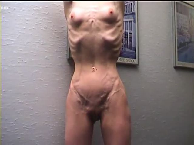 extreme anorexic